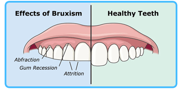 How to Stop Grinding Teeth While Sleeping – Dealing With Bruxism